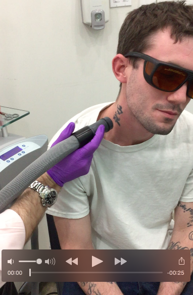 Laser Tattoo Removal Video Footage by Bare in Chicago