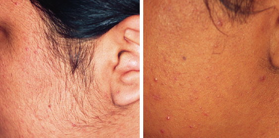 Before & After - Hair Removal · BareRemoval